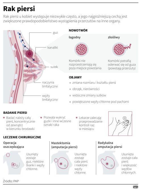 Czym jest rak piersi i jak się badać (Maria Samczuk/PAP)