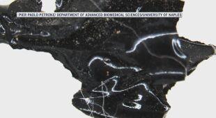 Czarny materiał to ludzki mózg